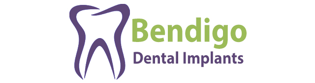 Bendigo Dental Implants - Dentists Australia
